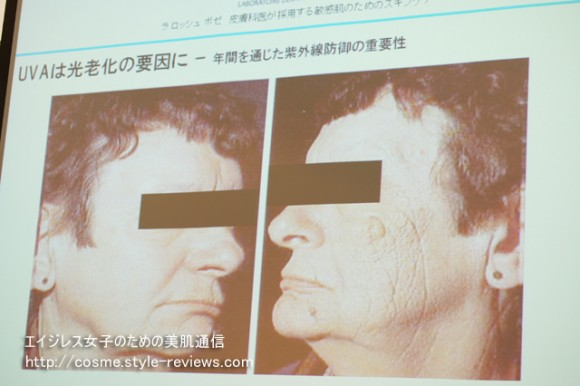 光老化の原因は紫外線A波